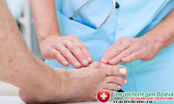 Лечение бурсита большого пальца