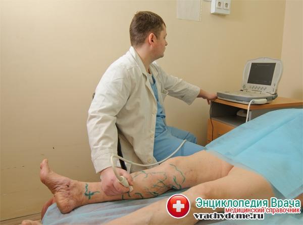 Лечение трофических язв