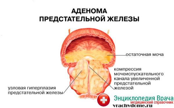 народные средства паразитов в печени человека