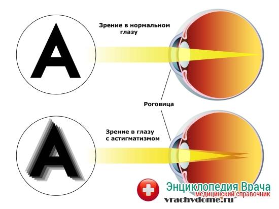 Возможно ли исправить зрение близорукость