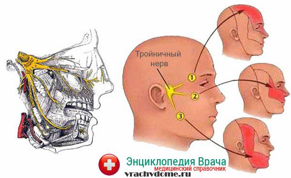 Бульбарная форма появляется, когда поражаются мышцы бульбарной группы нервов