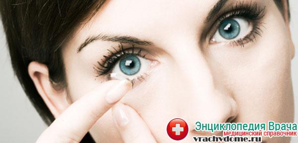 Коррекция зрения с помощью контактных линз