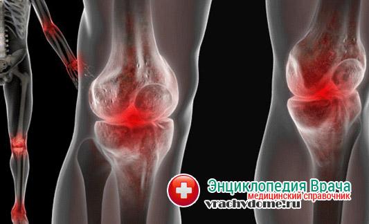 Гемартроз – кровотечения в суставы