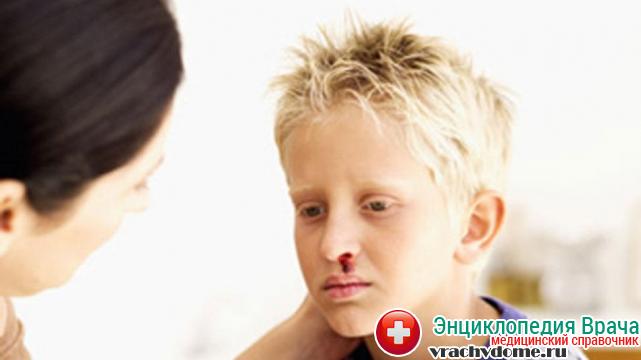 Гемофилия у детей – наследственное заболевание при котором систематически повторяются кровотечения которые трудно остановить