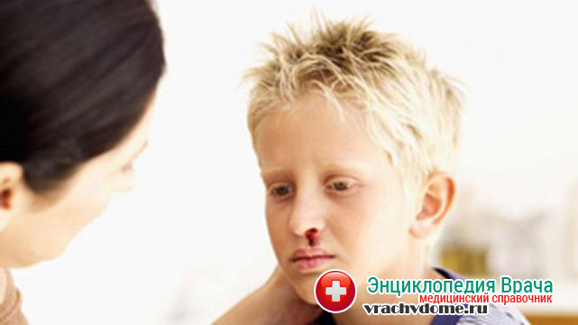 Кровотечения из носа и рта - признаки гемофилии