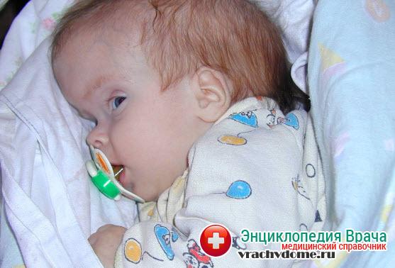 Гидроцефалия головного мозга может диагностироваться у новорожденных