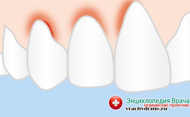 Гингивит характеризуется покраснением и кровоточивостью десен