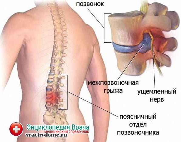 Лечения спины красноярск
