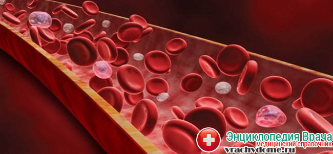 Тромбоцитопения характеризуется малым количеством тромбоцитов в крови