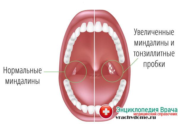 Болезнь в острой форме может развиваться по причине проникновения в организм человека бактерий, вирусов