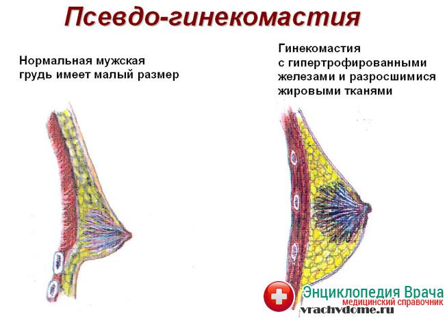 Ложная гинекомастия