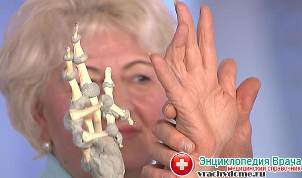 Контрактура Дюпюитрена – это заболевание, которое характеризуется перерождением рубцовых сухожилий, находящихся на ладонях