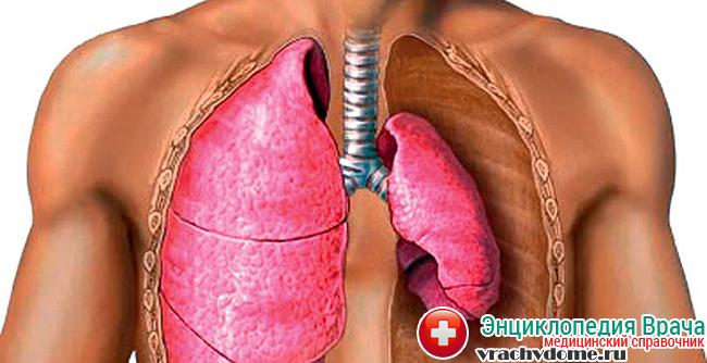 Пневмоторакс – это недуг, который возникает из-за избыточного скопления воздуха или газа в области плевры