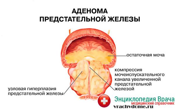 Лекарства витапрост форте