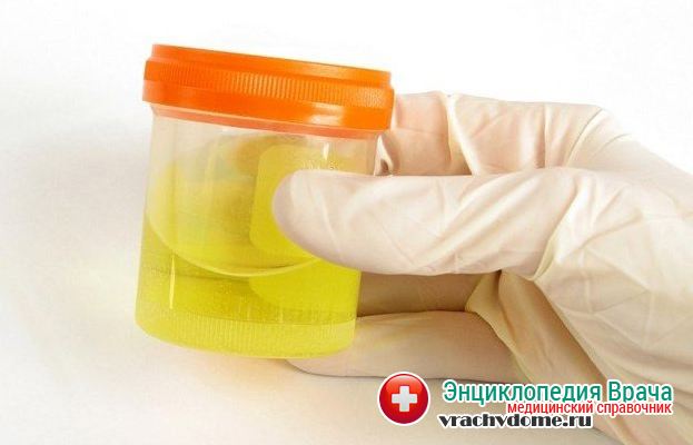 Уменьшение суточного количества мочи - один из симптомов гиронефроза