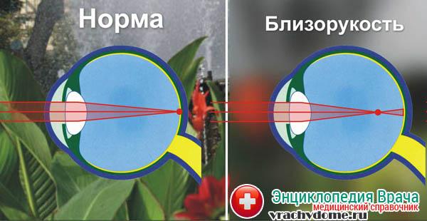 Близорукость является патологией рефракции глаза, при которой формирование изображений предметов происходит перед сетчаткой