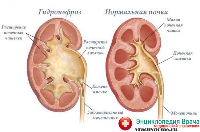 Гидронефроз почек вследствие мочекаменной болезни