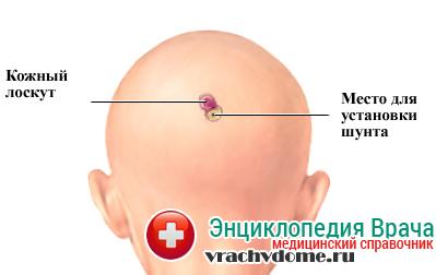 Лечение гидроцефалии методом шунтирования