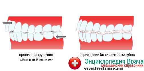 Повреждение зубов при бруксизме