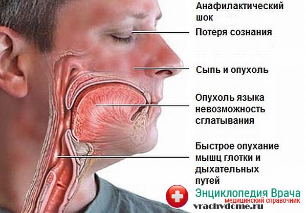 Симптомы состояния