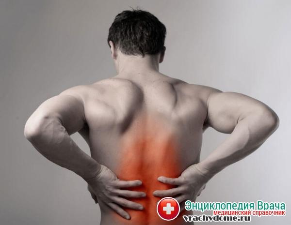 Радикулит симптомы и доврачебная помощь