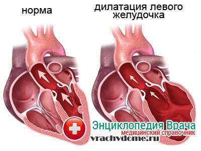 Дилатация - последствия сердечной недостаточночти