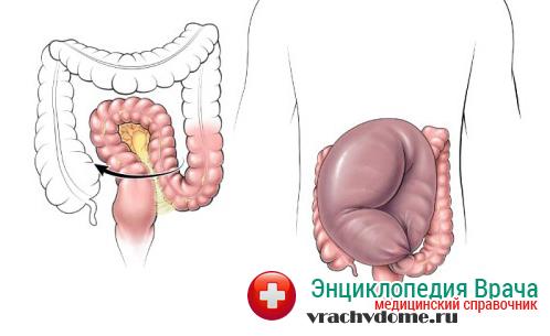 Долихосигма кишечника может стать причиной заворота кишки