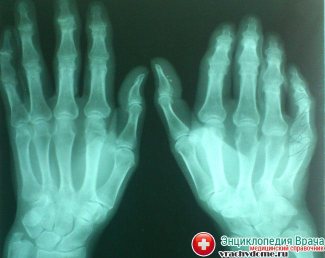 Диагностику заболевания проводят с помощью осмотра и рентгена