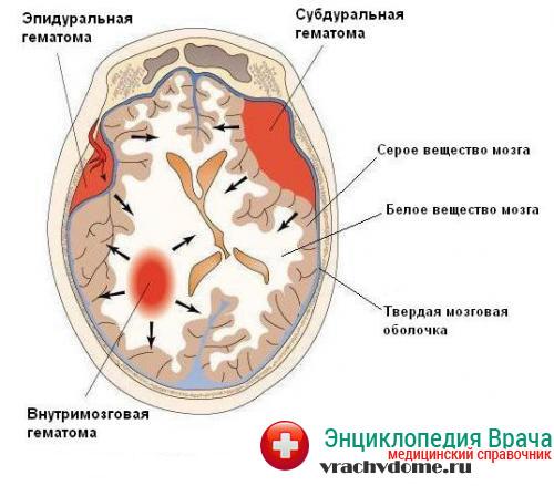 Виды гематом головного мозга