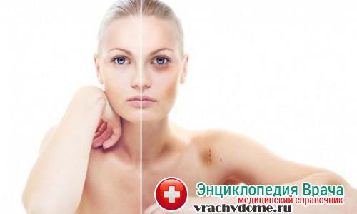 Кровоподтеки - признаки гемофилии