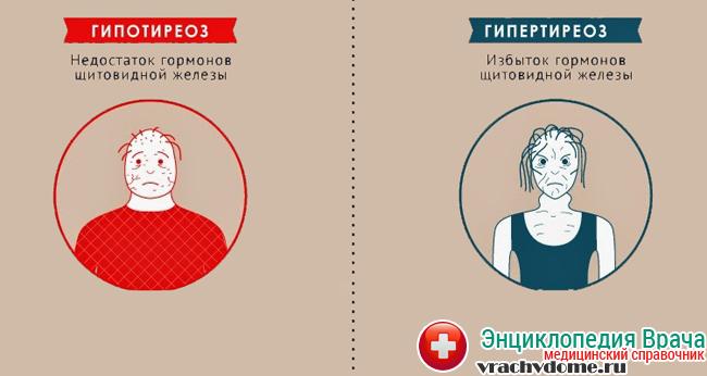 потенция у мужчин народные средства Дмитриев