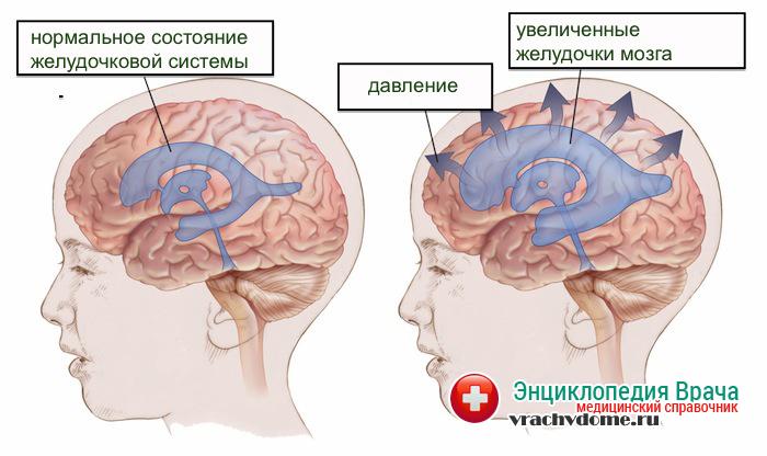 Если причиной развития гидроцефалии мозга становится новообразование, которое нарушает нормальное циркулирование жидкости, то лечение пациента направлено на удаление опухоли