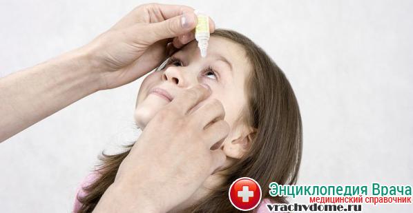 Если диагностируется гнойный конъюнктивит, то следует использовать назначенные капли