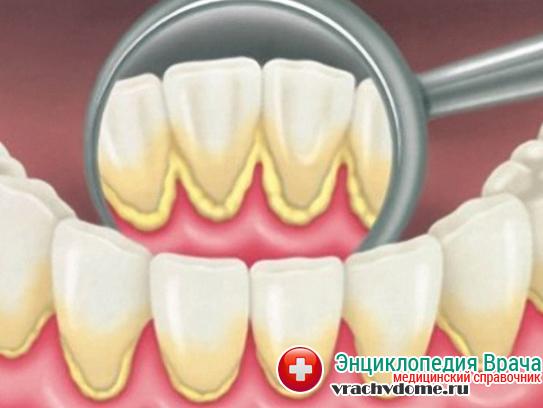 Устранение налета на зубах - обязательный этап в лечении гингивита