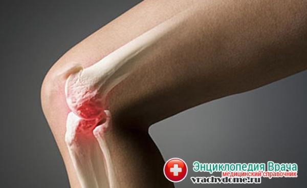 Симптомы диагностика и лечение остеомиелита