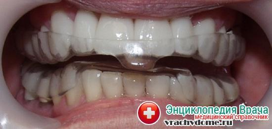 Зубная капа от бруксизма