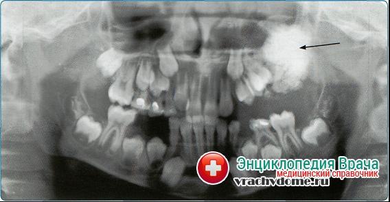 Рентгеновское обследование остеомиелита