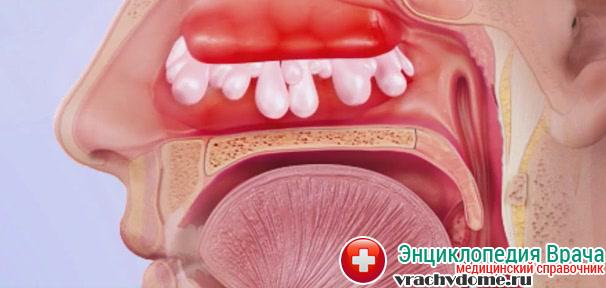 Полипы могут быть причиной развития болезни