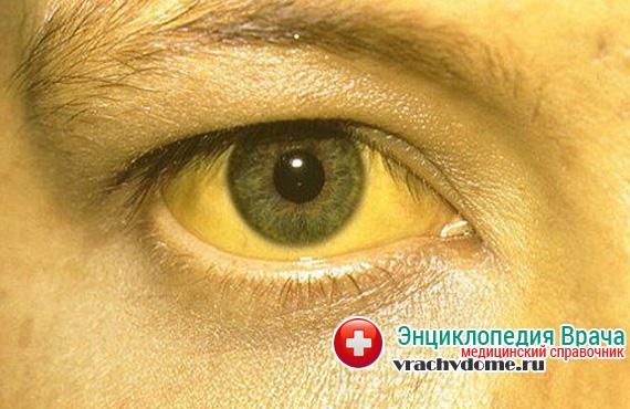 Желтизна кожи и глаз - симптомы повышенного билирубина в крови