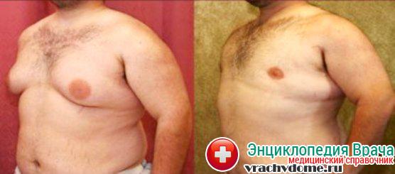 Вид до и после оперативного лечения гинекомастии