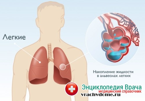 Отек легких – это неотложное состояние, требующее немедленного оказания медицинской помощи.