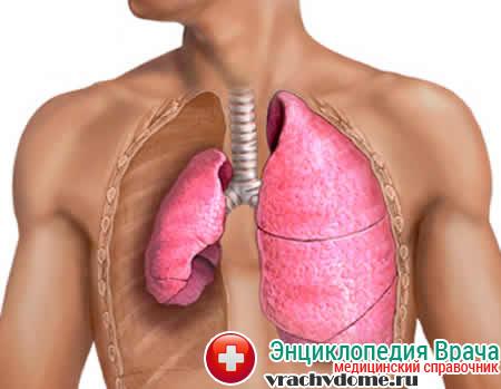 Спонтанный пневмоторакс – это заболевание, которое связано с нахождением в грудной клетке человек воздуха