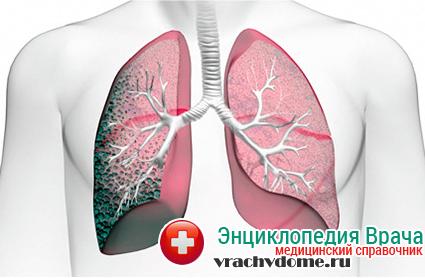 Одна из возможных последствий отека легких – пневмофиброз