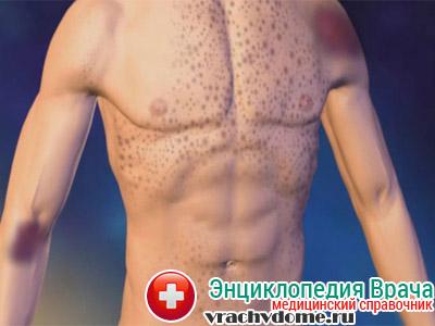 Диагностируется тромбоцитопения, как отдельная патология в виде хронической иммунологической тромбоцитопенической пурпуры