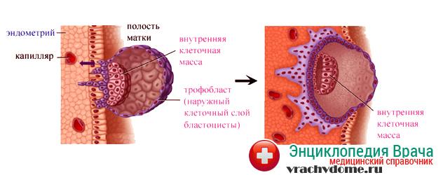 Медицина характеризует пузырный занос пролиферацией трофобласта