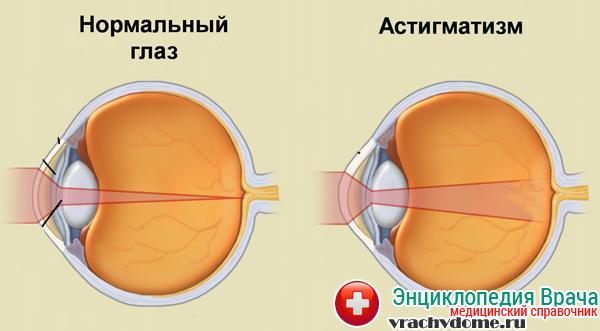 Временная потеря зрения одним глазом