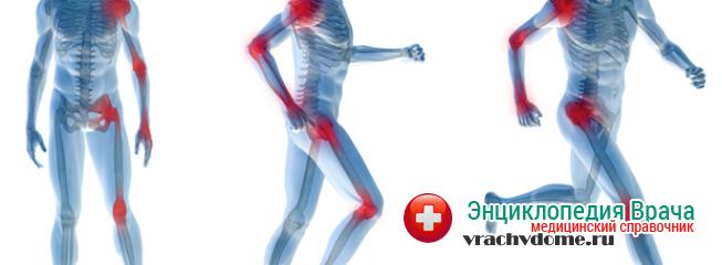 Ноющая боль в шее, пояснице, бедрах и других суставах