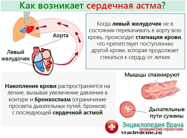 Развитие сердечной астмы