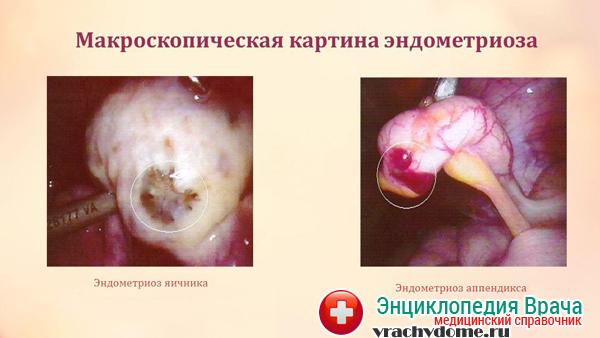 Эндометриоз - имптомы и лечение. Журнал Медикал