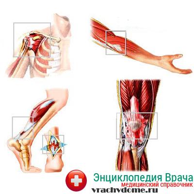 Самые распространенные тендинит коленного сустава и тендинит плечевого сустава